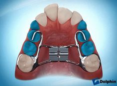 Is palatal expansion is right for my child?