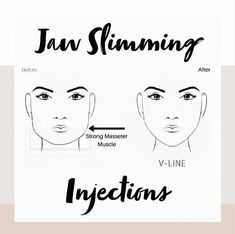 "The Face & Body Clinic on Instagram: ""💉 Jawline Slimming 💉⁣ ⁣ To create a soft, feminine jawline we place muscle relaxing injections into the masseter muscle (one of the many…"""