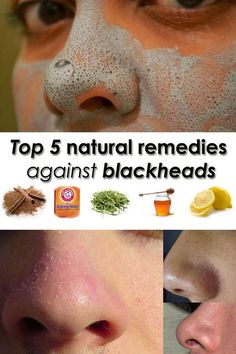 Top 5 natural remedies against blackheads