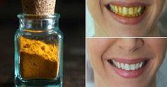 curcuma denti