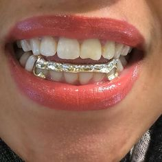 14k Gold overlay Removable Gold Teeth Grillz Caps including the mold kit and shipping/ 6 teeth /MA1