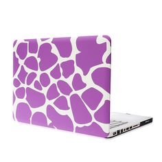 Cheap case for macbook pro, Buy Quality cases for macbook directly from China cover for macbook Suppliers: Classic matte print inch case for macbook pro 13 laptop bag protective shell cover for macbook 13 pro Macbook Pro Case, Laptop Accessories, Laptop Sleeves, Printer, Flag, Wallet, Cover, Pattern, Printers