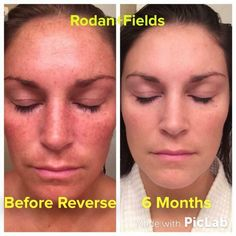"""It's time for your before and afters! These Results Don't Lie! This is a fellow consultants results and this is what she said: """"My 6 month results with the Rodan+Fields Reverse Regimen blow my mind! People tell me all the time 'Well you've always had nice skin.' When I look at my before picture, I had NO idea my sun damage was the bad. I am NEVER going back!"""" Ask me how to save 10%! courtneybrown1.myrandf.com"""