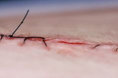 SMART STITCHES SEND DATA AS THEY HEAL WOUNDS THESE THREADS COULD SEND HEALTH INFO WIRELESSLY TO YOUR DOCTOR   Close up shot of skin with a wound closed by stitches