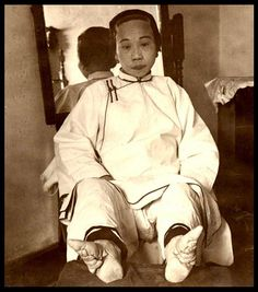 Vintage image of a Chinese woman with bound & disfigured feet. www.neatorama.com