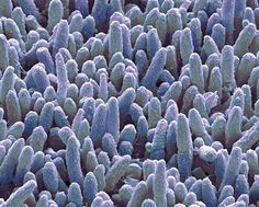 Electron microscope image of dental plaque bacteria. How long do you think a routine hygiene appointment should be on an adult? Dentaltown Message Board Hygiene Discussions http://www.dentaltown.com/MessageBoard/thread.aspx?s=2&f=119&t=226934&v=1  #dentalplaque #dentalhygiene #dentalhygienist #rdh #dentist #dentistry #dental #dentaltown #hygienceappointmentlength