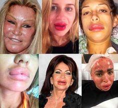 Shoqata e Mjekësisë Shqiptare News Health, Health Care, Pores, Vogue Fashion, Medical, Beauty, Fitness, People, Scary