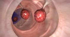 DOCTORS ARE IN A SHOCK: THIS KILLS 93% OF COLON CANCER IN JUST 2 DAYS! - Healthy Life Center