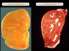 Karaciğer yağlanması çok tehlikeli ve sinsi bir hastalıktır. Mutlaka dikkat edin, ihmal etmeyin!! Karaciğer yağlanmasına karşı ...