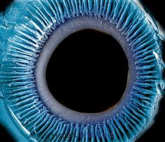 """scienceyoucanlove: """" Eye showing the inner surface of the iris, pupil, and ciliary processes. The lens was removed to show the posterior surface of these structures. The iris regulates the amount of..."""
