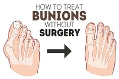 Sometimes, the big toe can lean towards the rest of the toes. Over time, this leads to deformity of its base and the base pushes outward. This resulting condition is called a bunion or a