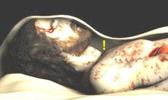 """~ Akiane Kramarik's painting of the Shroud Of Turin. This is the real face of Yeshua HaMashiach except that during His beating/torture, His nose was broken as well. The nose is made of cartilage, therefore, He fulfilled Scripture by the words: """"not a bone shall be broken."""" ~"""