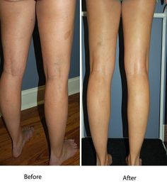 Sclerotherpay has been one of the most commonly used procedures for treating varicose and spider veins for many years, and is considered the gold standard for treating superficial leg veins. Dr Richard Keyes has many years experience in performing the treatment with excellent results. Come in for a Consultation and see what we can do for you; early treatment is important to reduce the risk of complications occurring or getting worse. Call 4779 3333 for all enquiries.