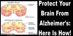 Protect Your Brain From Alzheimer's: Here Is How! | Family Health Freedom Network