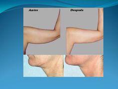 kIT REAFIRMANTE CORPORAL, CUELLO, BRAZOS, MUSLOS, RODILLAS  TORELLÓ-TÚERESLOMÁS  A medida que envejecemos, la piel pierde colágeno y elastina. El colágeno y la elastina son los encargados de aportar a nuestros tejidos firmeza y elasticidad, así que aumentar su producción es ta