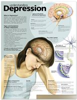 Understanding depression: What is depression? Who is at risk for depression? Areas of the brain Affected by depression; Signs and Symptoms of Major Depression; Types of depression; What Is Depression, Depression Symptoms, Depression Remedies, Depression Awareness, Depression Help, Managing Depression, Psychology Facts, Mental Health, Health And Wellness