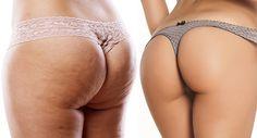 Vuoi indossare il bikini ed il tuo incubo è la CELLULITE. Bastano 2 ingredienti NATURALI per combatterla.