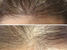 Maquiagem de longa duração: antes e depois - 1 (© Sobrancelha 3D: você já ouviu falar? Foto: Divulgação)