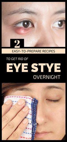 2 Easy-To-Prepare #Recipes To Get Rid Of #Eye Stye Overnight