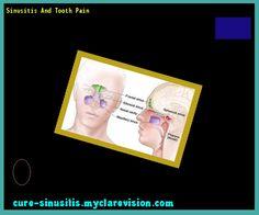 Sinusitis And Tooth Pain 105407 - Cure Sinusitis
