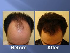 The desired hair density is almost impossible to achieve in one go. This limitation occurs as only a limited number of grafts can be implanted in the recipient's area.