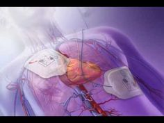 This Vfib video is created by Argosy Medical for Visible Body.