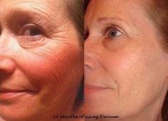 #Nerium AD's Patented NAE-8 extract does amazing things for #skin  betsyrsmith.me/...