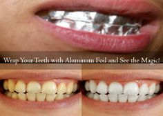 There are lots of DIY Natural teeth whitening at home methods, but this one will undoubtedly sweep you off your feet. And, you won't believe what the magic is all about. For natural teeth whitening at home, you will need 2 small pieces of aluminum foil 2 teaspoons of baking soda Salt You first begin