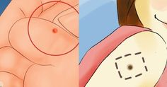 Viral Alternative News: How To Easily Remove Moles & Warts With Hydrogen Peroxide (& Stop Them From Coming Back)