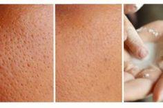 Get Rid of Large Pores Using One Ingredient