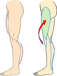 Perna curvatura lateral