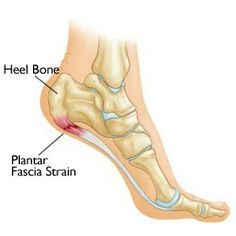 8 Home Remedies For Plantar Fasciitis...I've been dealing with it for months & it's so painful. GREAT article!