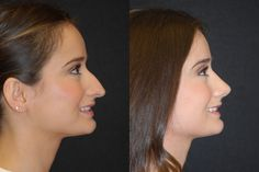 rhinoplasty before and after - Google Search