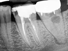 REASONS FOR VISITING DENTIST: Dental Retreatment (part 1): Root Canal Treatment (endodontic treatment)
