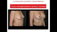 MASTOPLASTICA ADDITIVA FOTO PRE E POST  LA CLINICA DEL SENO DR MARTINO S...
