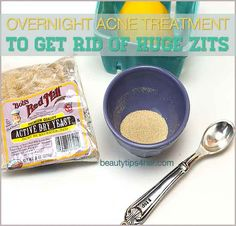Overnight Acne Treatment to Get Rid of Huge Zits | Beauty and MakeUp Tips