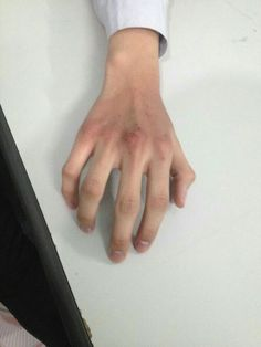 Hand Reference, Pose Reference, Bruised Knees, The Secret History, True Beauty, Beautiful Hands, Human Body, Haikyuu, Blood