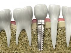Dental Implants - Yes, we offer dental placement at Bowmanville Dental. We also offer 0% financing for dental treatment.