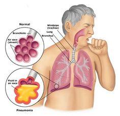 21 best nursing pneumonia images health nursing bacterial