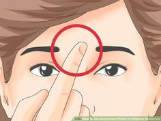 Image titled Use Acupressure Points for Migraine Headaches Step 1