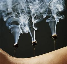 Acupuncture + Moxibustion Therapy. Combustion of Mugwort. Moxas are made from dried mugwort. It can be applied indireclty, on Acupuncture needles, or directly on the skin.
