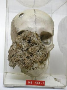 A female skull dating from 1829 with the bony skeleton of a large facial tumour (possibly caused by neurofibromatosis) involving the right side of the face. The tumour arose in the right antrum, and during five years' growth destroyed the right malar bone, the palate, and the maxilla. Specimen from the Hunterian Museum of the Royal College of Surgeons, London.