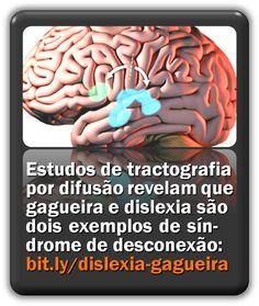 Estudos de tractografia por difusão revelam que gagueira e dislexia são dois exemplos de síndrome de desconexão. Green Beans, Vegetables, Food, Dyslexia, Essen, Vegetable Recipes, Meals, Yemek, Veggies