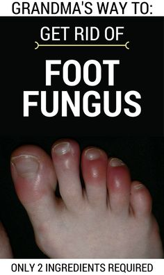 Foot fungus is a problem faced by many people that can get worse if is not treated. Often you have to air your feet and to use different treatments to prevent its reappearance. Otherwise you'll face some with complications such as toenail loss or serious injuries between toes. This disease appears if you wear tight …