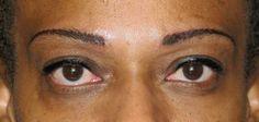 After FeatherStroke permanent eyebrow procedure.