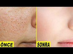 Hogyan lehet végleg megszabadulni a nagy nyitott pórusoktól - távolítsa el a sötét foltokat - YouTube Facial Tips, Facial Care, How To Get Rid, How To Remove, Anti Aging, Remover Manchas, Collagen Drink, Clean Pores, Sagging Skin