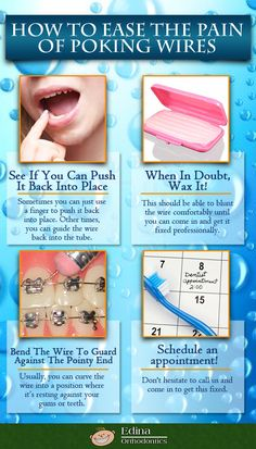 Infographic - Tips to ease the pain of poking wires at Edina Orthodontics - braces Edina - poking wires on braces #infographic #orthodontic #edinaortho