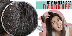 চুলের খুশকি রোধে ঘরোয়া পদ্ধতি | Domestic method to prevent hair dandruff