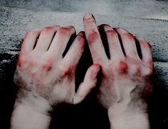 Bruises Aesthetic, Jeter Un Sort, Foto Instagram, Red Aesthetic, Dark Art, It Hurts, Blood, Horror, Character Design