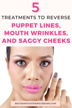 Marionette lines are long vertical facial lines that extend from the corner of the mouth to the chin and can often resemble a 'doll' hence the name marionette lines. Marionette lines are caused by many factors including genetics, weight loss, aging, and are often due to a loss of skin elasticity and collagen. If you want to know what treatments work best to get rid of marionette lines, keep reading. #howtogetridofmarionettelines #marionettelines #laughlines Marionette Lines, Skin Elasticity, How To Get Rid, Genetics, Collagen, Facial, Weight Loss, Skin Care, Facial Treatment